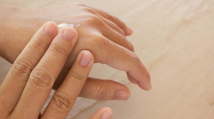 Trockene Haut begünstigt Warzenbildung